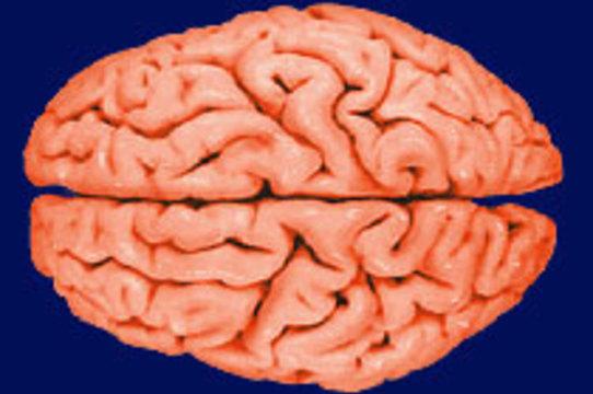 Американка оценила пропавший мозг мужа в [4 миллиона долларов]