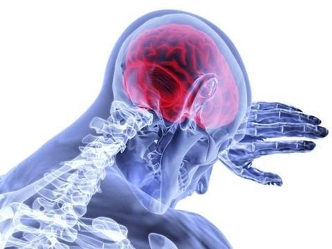 Выраженная депрессия связана с риском развития инсульта