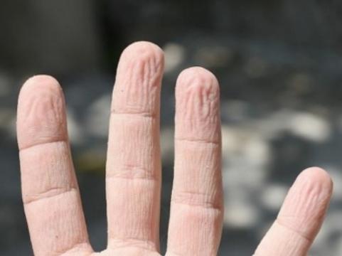 Ученые объяснили значение [сморщивания кожи при намокании]