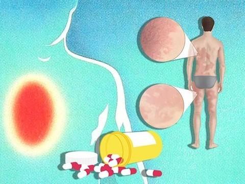 Препараты для снижения кислотности желудочного сока увеличивают риск аллергии
