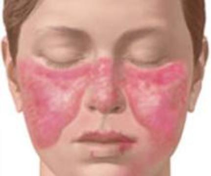 Системную красную волчанку можно выявить за 10 лет до первых симптомов