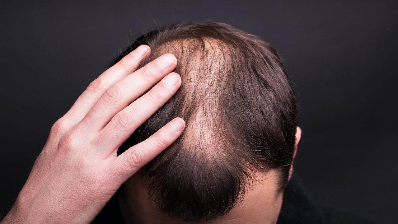 Действительно ли помогает пересадка волос?