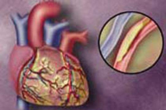Обнаружена связь между [болезнями сердца и раком кишечника]