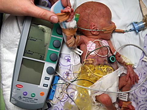Австралийские врачи установили кардиостимулятор [новорожденной весом в полкилограмма]