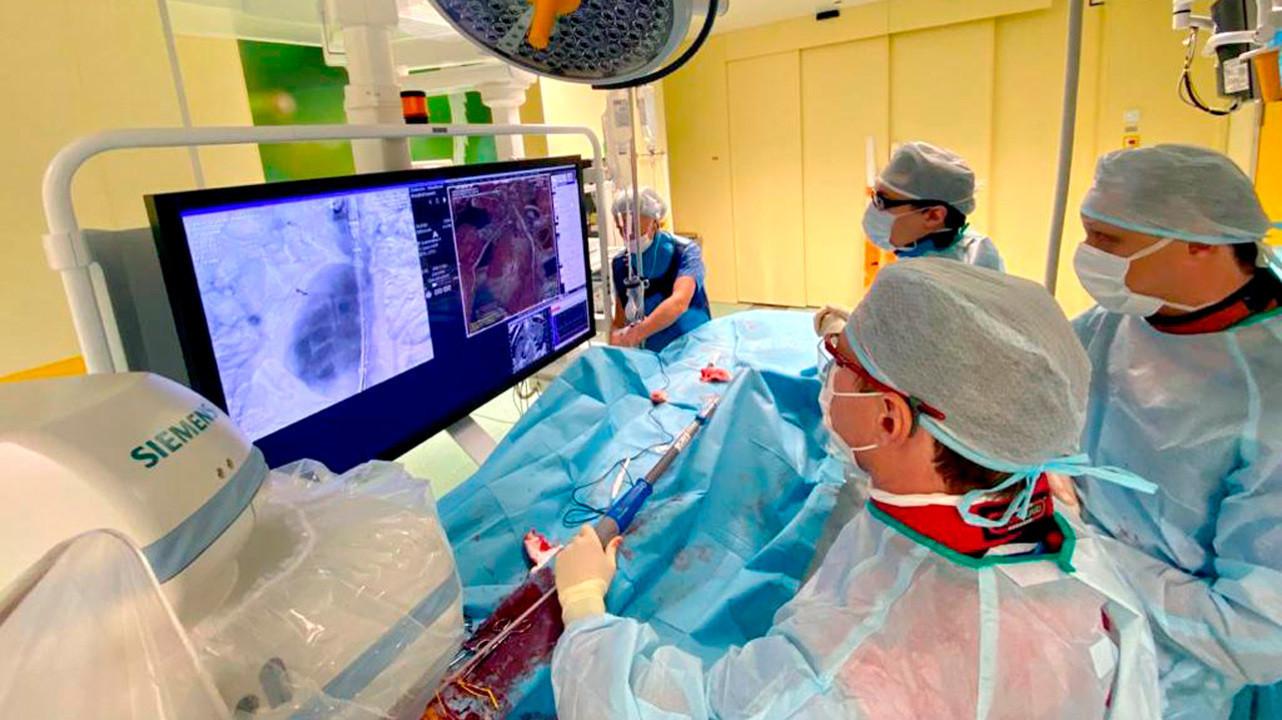 В Санкт-Петербурге спасли пациента с разрывом аневризмы аорты без полостной операции