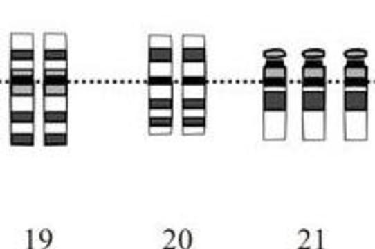 [Лишняя хромосома] защищает людей с синдромом Дауна от рака