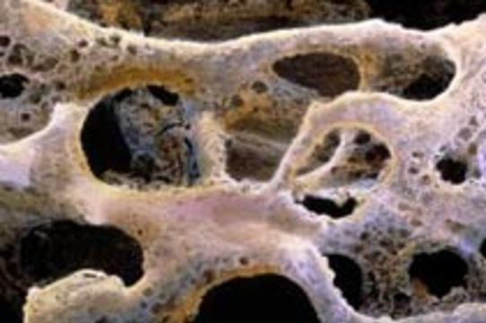 Инъекции тиреотропного гормона [укрепляют кости]
