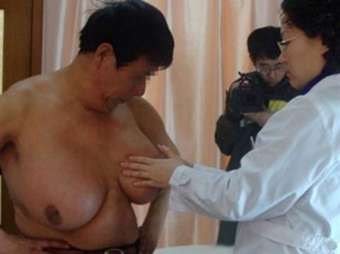 Китайскому фермеру [удалили гигантские молочные железы]