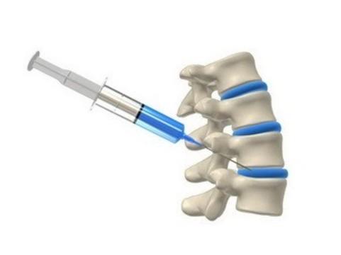 Стволовые клетки [избавили пациентов от сильных болей в спине]