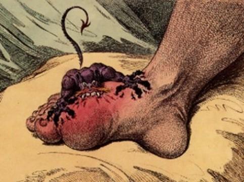 Подагру связали [с дефицитом фруктов в эпоху олигоцена]