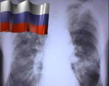 В России от туберкулеза ежегодно умирает около 30 тысяч человек