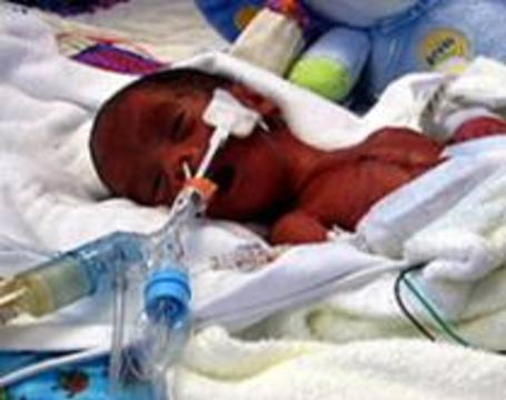 Кардиохирурги прооперировали самого маленького недоношенного новорожденного