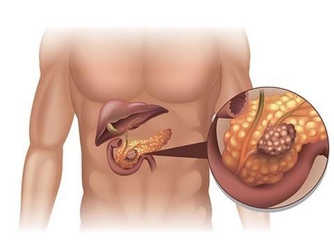 Как не пропустить рак поджелудочной железы - новости медицины