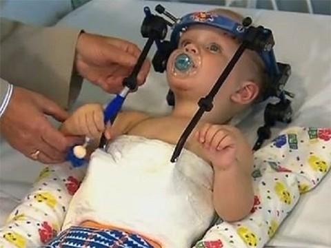 Ребенку пришили оторванную в ДТП голову