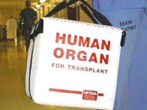 Московским трансплантологам не хватает [донорских органов]