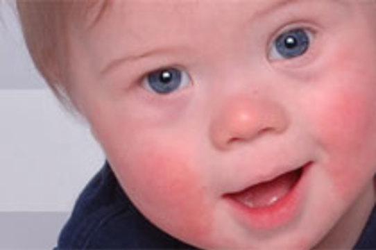 В Великобритании стали чаще рождаться дети с [синдромом Дауна]