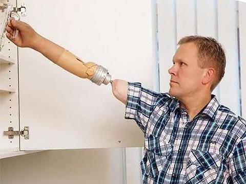 Для прикрепления нового протеза руки используют остеоинтеграцию