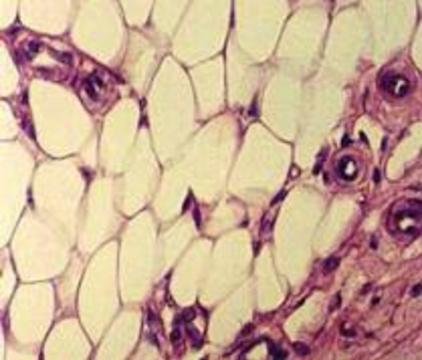 Атеросклероз можно лечить жиром