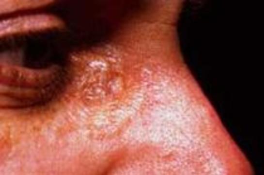 В США создано вещество, предотвращающее рак кожи