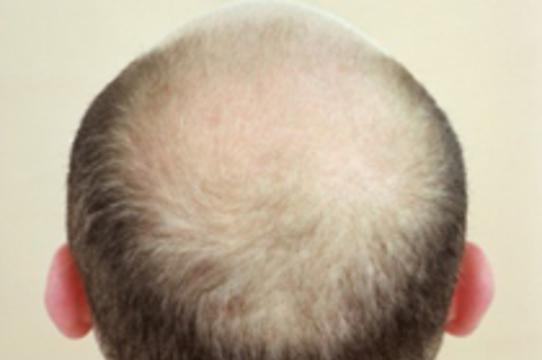 Новые волосы можно вырастить [из клеток кожи]