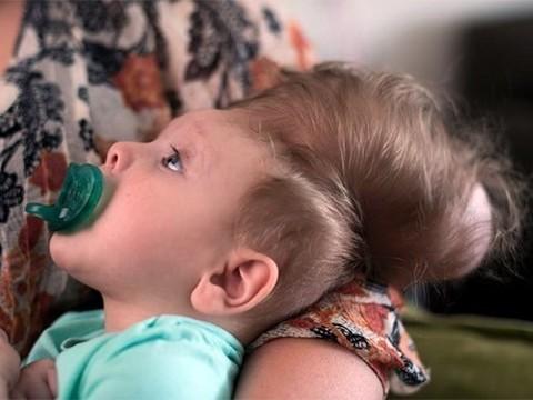Мальчику с черепно-мозговой грыжей спасла жизнь трехмерная печать