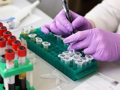 «О злокачественности новообразования в идеале может судить только патолог»