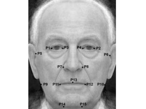 Мужчин с несимметричным лицом [ожидает старческое слабоумие]