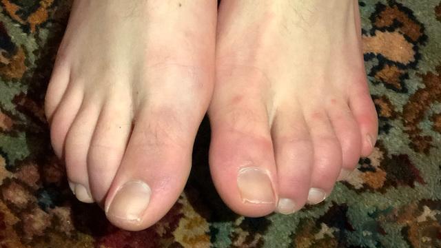 Фиолетовые пальцы — еще один симптом коронавируса?