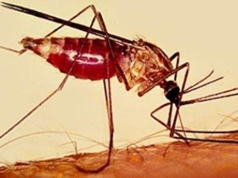 Конголезец [привез малярию в Челябинск]