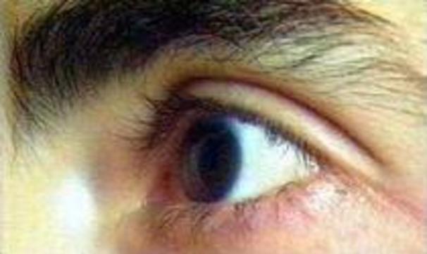 Искусственный глаз двигается как настоящий