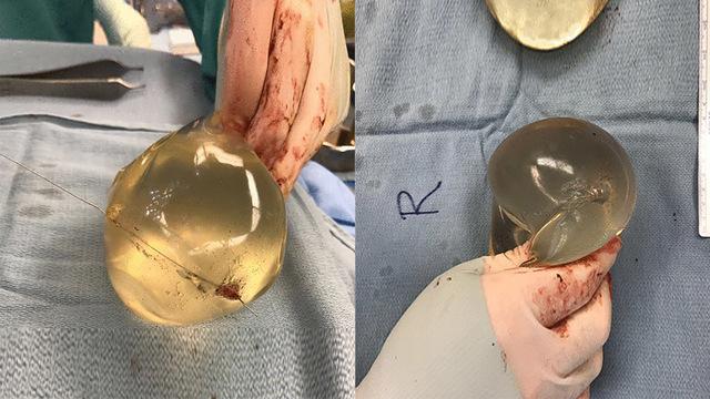 Силиконовый имплантат спас женское сердце от пули