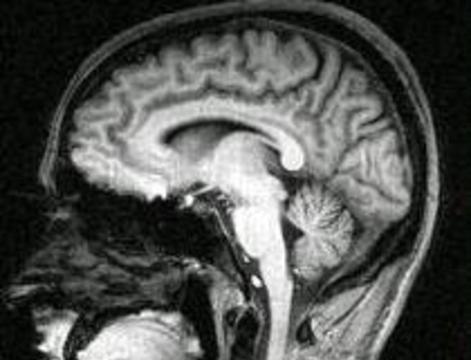 Врачи научились рано выявлять шизофрению