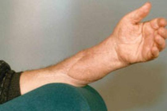 Немецкие хирурги [пересадили пациенту обе руки]
