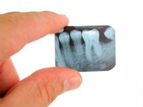 Обнаружена связь [между рентгеном зубов и опухолями мозга]