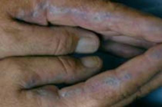 В США запретят продавать без рецепта отбеливатели кожи