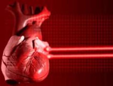 Лазер выжигает отверстия в сердце