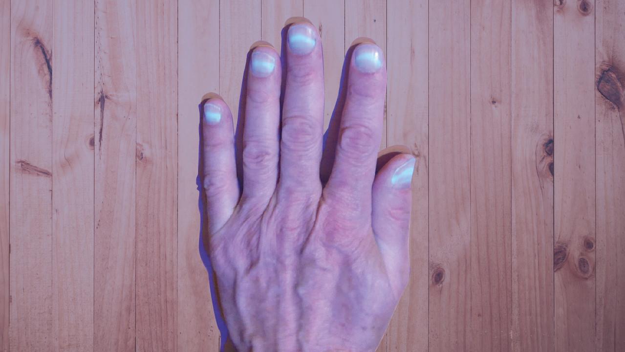 «Светятся ногти»: переболевшие COVID-19 столкнулись с необычным явлением