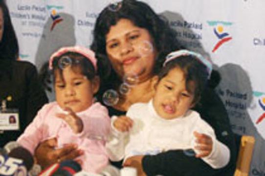 Разделенные сиамские близнецы из Коста-Рики [выписаны домой]