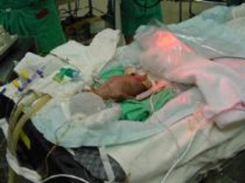 Австралийская девочка родилась уже прооперированной