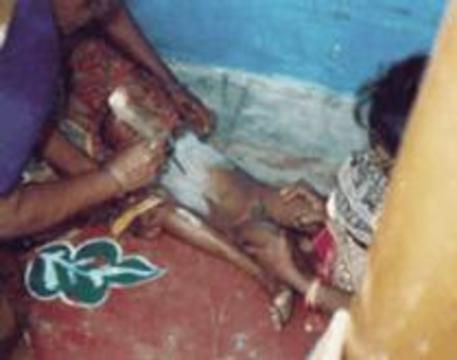 Индийские врачи требуют запретить знахарские прижигания