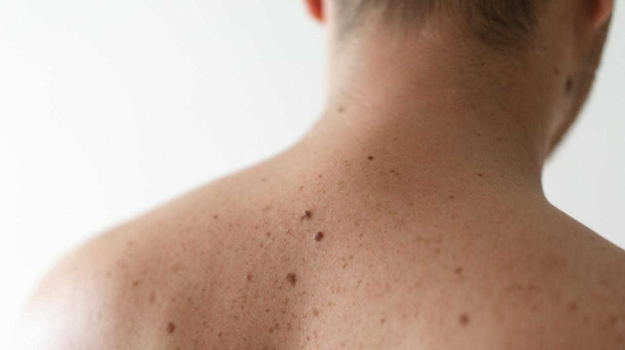 Высокий уровень тестостерона связали с риском меланомы у мужчин