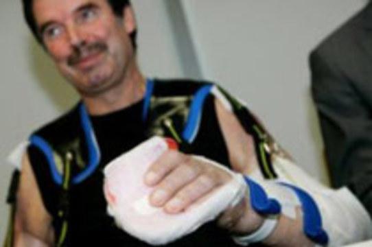 Мужчина с полностью пересаженными руками [доволен результатами операции]