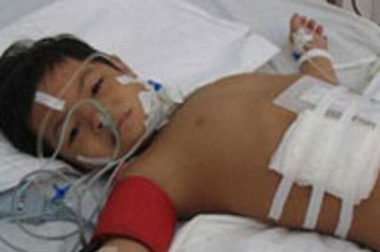 Вьетнамские хирурги избавили семилетнюю девочку от [паразитического близнеца]