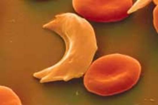 Наследственные заболевания крови будут лечить стволовыми клетками