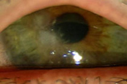 Грибковое заболевание глаз могло распространяться через жидкость для очистки линз
