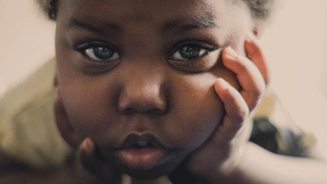 """Чернокожие дети с COVID-19 более подвержены схожему с """"Кавасаки"""" синдрому - ученые"""
