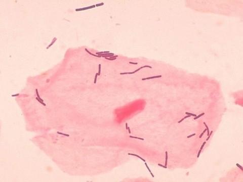 Ученые составили крупнейший каталог вагинальной микробиоты