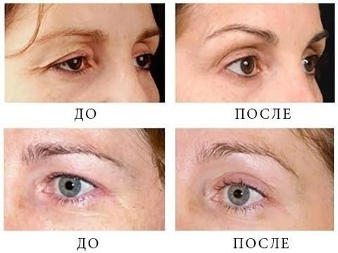 Удаление темных кругов под глазами? Медики настроены скептически