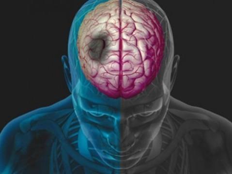 Терапию инсульта стволовыми клетками [впервые испытали на людях]