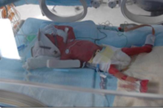 В украинском лекарстве для недоношенных младенцев нашли [неизвестных микробов]